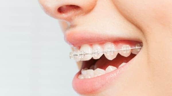corticotomie alveolaire chirurgie du visage paris chirurgien maxillo facial paris docteur charles mathieu bandini paris 17