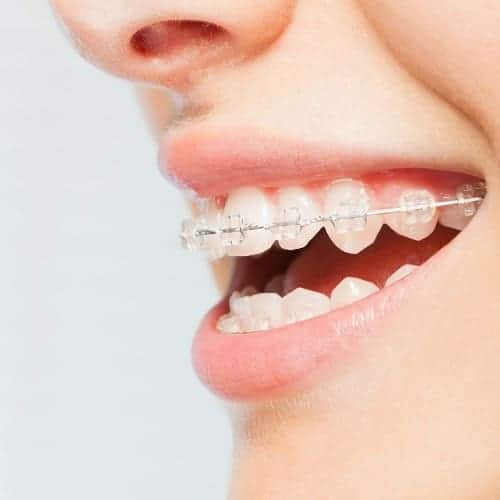 corticotomie alveolaire chirurgie du visage paris chirurgien maxillo facial paris dr charles mathieu bandini paris 17