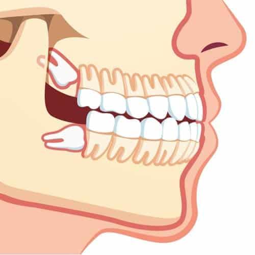 dents de sagesse chirurgie du visage paris chirurgien maxillo facial paris dr charles mathieu bandini paris 17