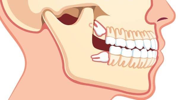 dents de sagesse operation chirurgie du visage paris chirurgien maxillo facial paris docteur charles mathieu bandini paris 17