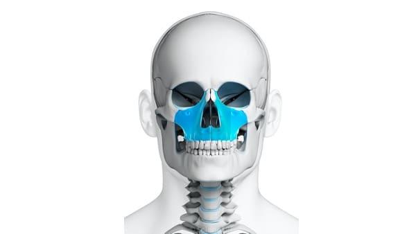 disjonction intermaxillaire chirurgie du visage paris chirurgien maxillo facial paris docteur charles mathieu bandini paris 17
