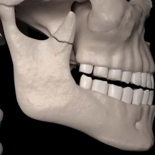 fracture machoire chirurgie du visage paris chirurgien maxillo facial paris dr charles mathieu bandini paris 17