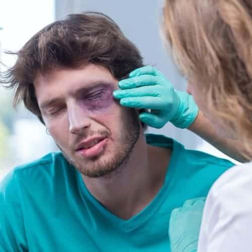 fracture orbite chirurgie du visage paris chirurgien maxillo facial paris dr charles mathieu bandini paris 17
