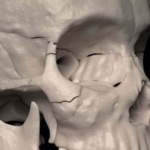 fracture zygoma chirurgie du visage paris chirurgien maxillo facial paris dr charles mathieu bandini paris 17