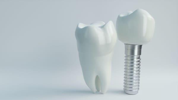implant dentaire chirurgie du visage paris chirurgien maxillo facial paris docteur charles mathieu bandini paris 17