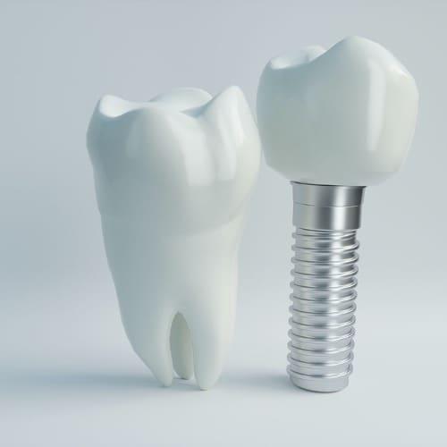 implant dentaire chirurgie du visage paris chirurgien maxillo facial paris dr charles mathieu bandini paris 17