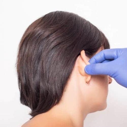 otoplastie paris chirurgie oreilles decollees chirurgie esthetique visage paris chirurgien maxillo facial docteur charles mathieu bandini paris 17