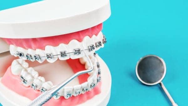 plaque vis ancrage orthodontique chirurgie du visage paris chirurgien maxillo facial paris docteur charles mathieu bandini paris 17