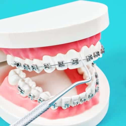 plaques vis ancrage orthodontique chirurgie du visage paris chirurgien maxillo facial paris dr charles mathieu bandini paris 17