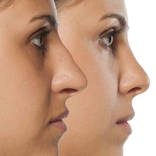 rhinoplastie chirurgie esthetique visage paris chirurgien maxillo facial docteur charles mathieu bandini paris 17